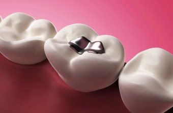 Can Dry Mouth Lead to Tooth Decay?