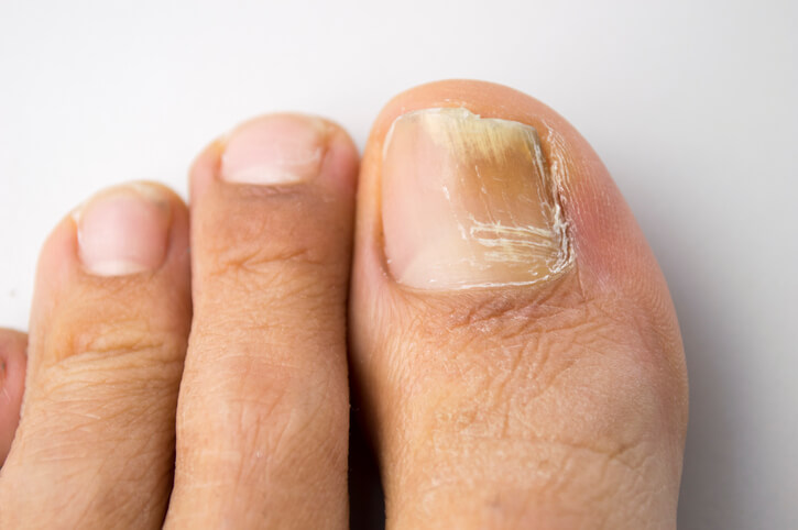 Toenail Fungus Treatments You Can Perform at Home | Enlighten Me