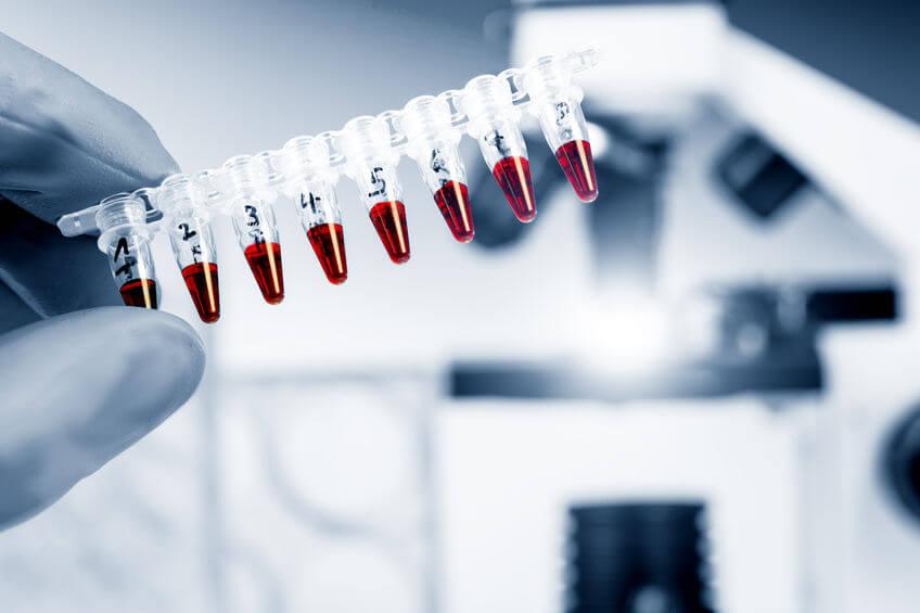 scientist holding blood samples