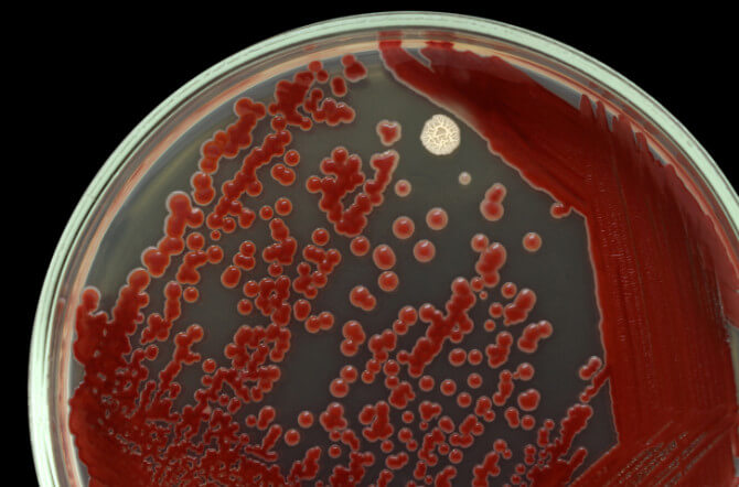 6 Warning Signs Your Well Is Biofouled