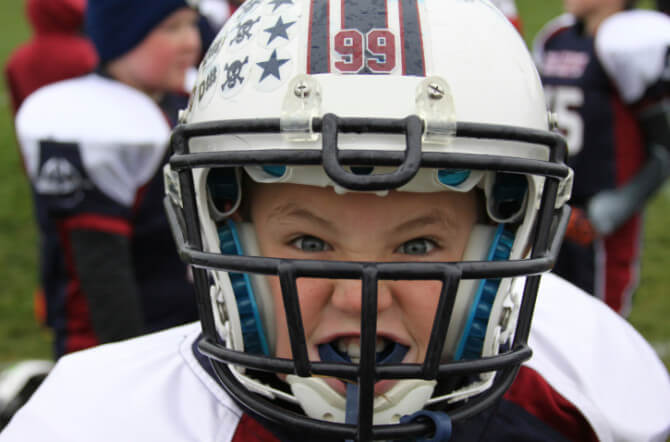 What Are the Riskiest Kids' Sports for Head Injuries